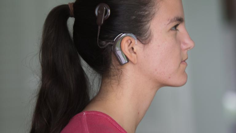the controversy of cochlear implants Cochlear implants: one of the more groundbreaking biomedical achievements in the last thirty years is the cochlear implant.